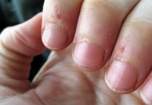 what-to-do-for-a-hangnail-that-hurts